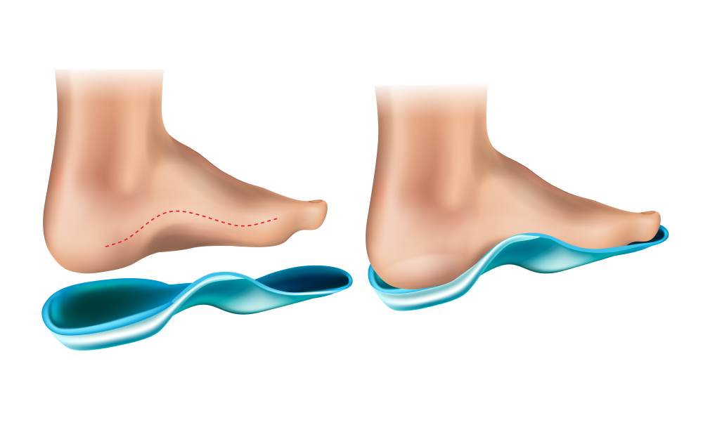best orthotics shoes for foot issues