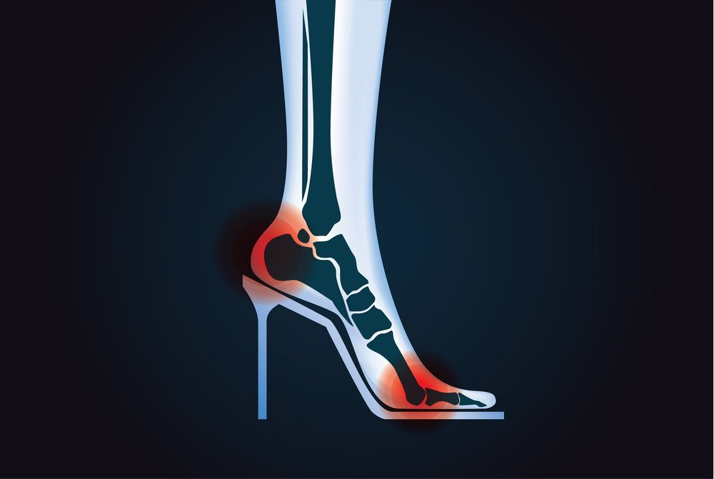 high heel shoes for plantar fasciitis