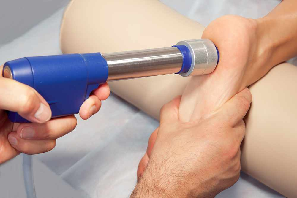 shock-wave-therapy-plantar-fasciitis