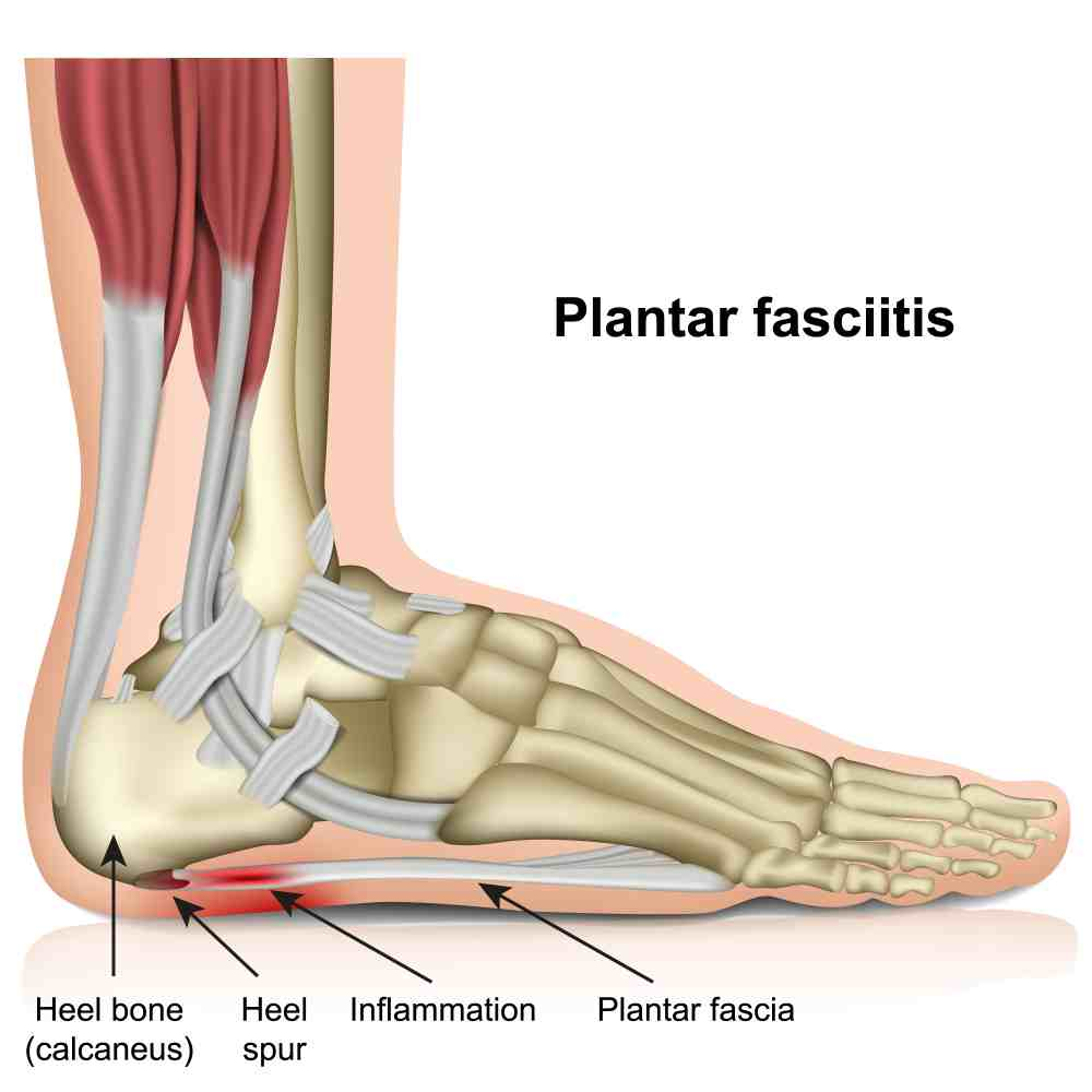 what happens if plantar fasciitis is left untreated